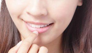 Σκασμένα και αφυδατωμένα χείλη από τον ήλιο; Υπάρχει λύση | Pagenews.gr