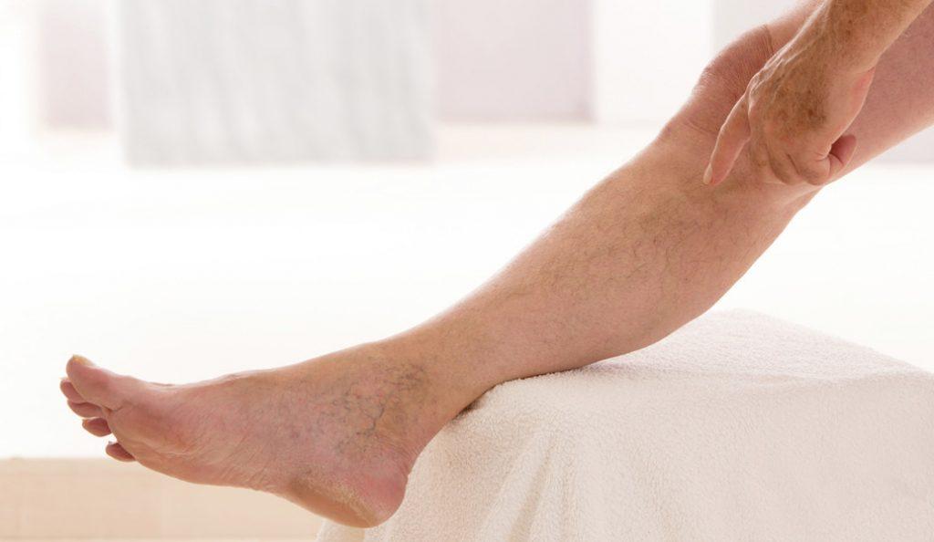 Έρευνα: Οι ψηλοί άνθρωποι κινδυνεύουν να εμφανίσουν θρόμβους στις φλέβες | Pagenews.gr