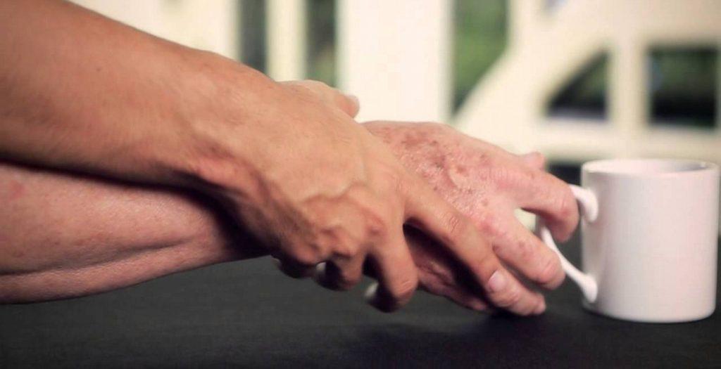 Έφτιαξαν νευρώνες από ανθρώπινο δέρμα για την θεραπεία του Πάρκινσον | Pagenews.gr