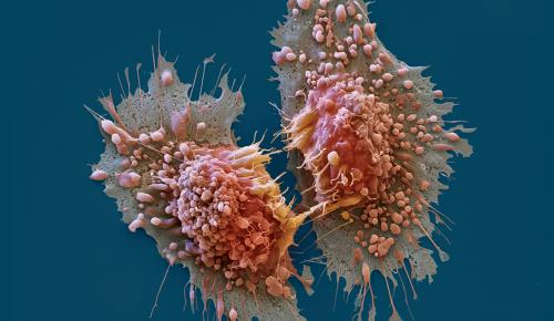 Καρκίνος στο πάγκρεας: Ενθαρρυντικά δεδομένα από χημειοθεραπευτικά σχήματα   Pagenews.gr