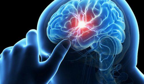 Έρευνα: Λιγότερο σοβαρό το εγκεφαλικό με ένα μισάωρο περπάτημα τη μέρα | Pagenews.gr