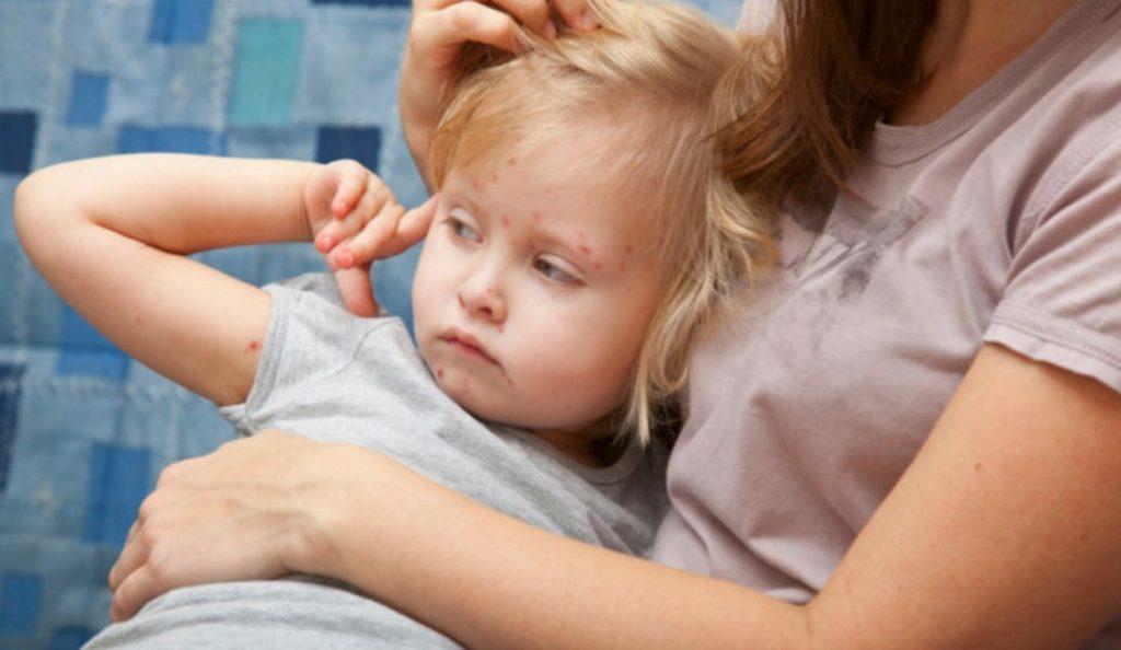 ΚΕΕΛΠΝΟ: Στα 871 τα καταγεγραμμένα κρούσματα ιλαράς στην Ελλάδα | Pagenews.gr