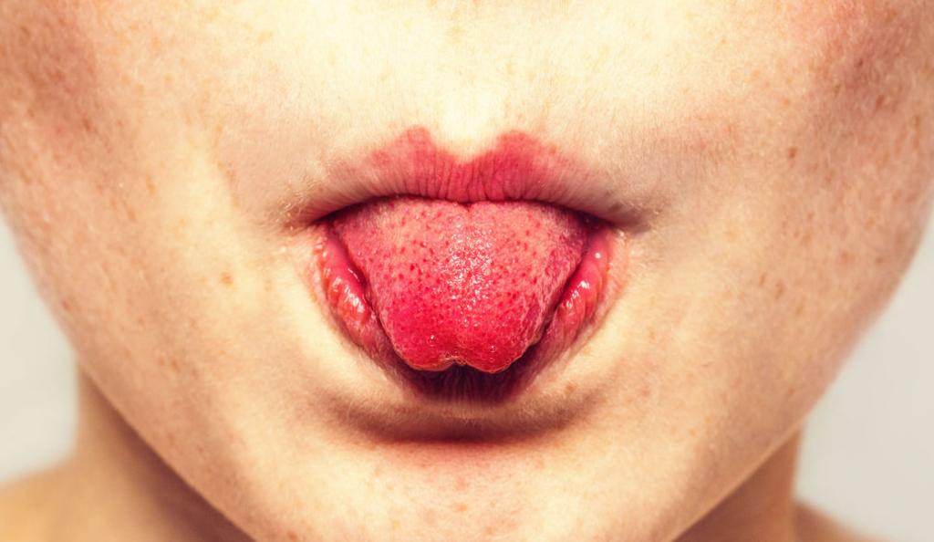 Δάγκωμα της γλώσσας: Γρήγορη αντιμετώπιση για το τραύμα   Pagenews.gr