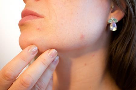 ΠΟΥ: Κατά 300% αυξήθηκαν τα κρούσματα ιλαράς από τις αρχές του έτους   Pagenews.gr