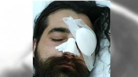 Επεισόδια στο ΟΑΚΑ: Οργή από τον οπαδό που έχασε το μάτι του – «Να βρεθεί ο υπαίτιος» | Pagenews.gr